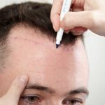 Things to know before getting hair transplant
